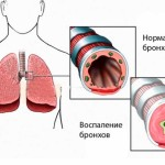 Bronchial diseases