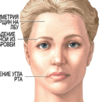 Signs of stroke on face